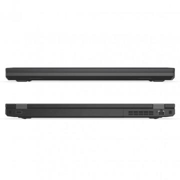 Фото 5 Ноутбук ThinkPad L570 (20J9S07Q00)